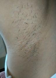 ジョモリーを使ってから10日以降経過後にワキ毛が生えてきてしまった画像