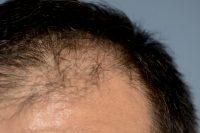 髪の毛が少なめのイメージ