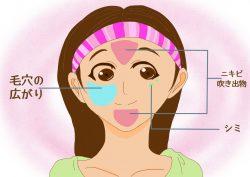 昔はオデコと顎のニキビ、今はシミに悩んでいる女性の画像