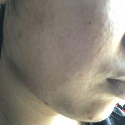 ピオリナ20日目の肌画像