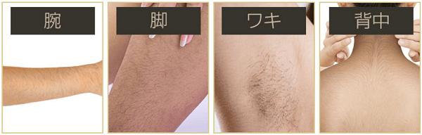 ビダンザロジック女性用で処理できるムダ毛の部位の画像