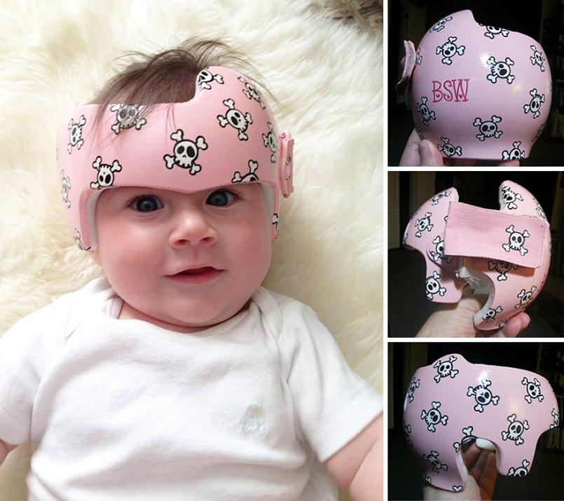 медицинские шлемы для детей как уникальные объекты искусства