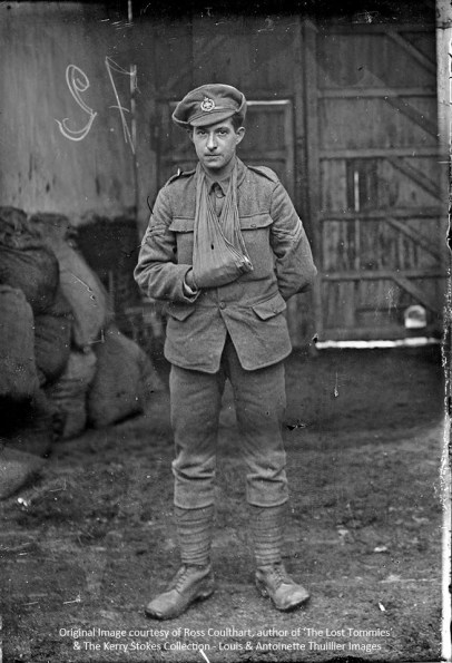 A soldier sporting an injured hand