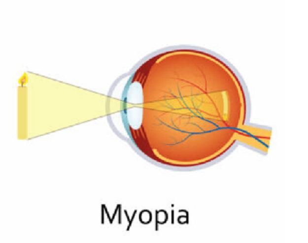 myopia ammetropia