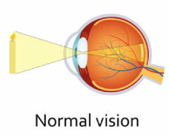 normal vision emmetropia