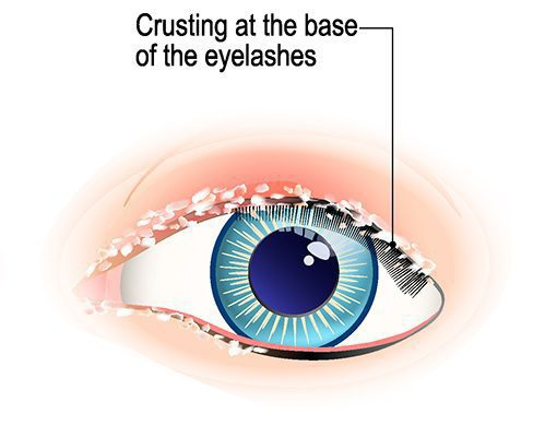 Bacterial Blepharitis : Inflammation of eyelid