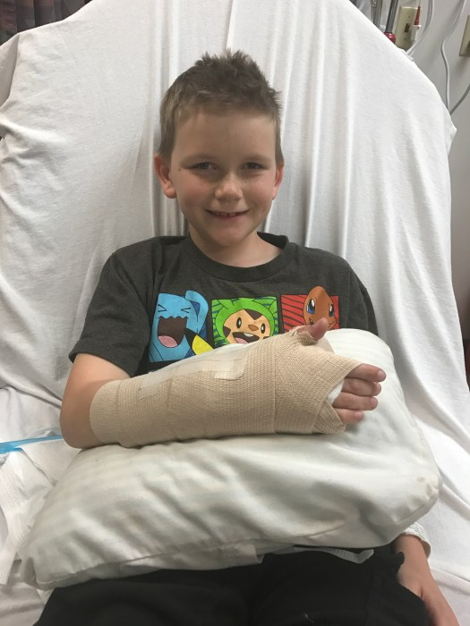 Broken arm...and he's still smiling!