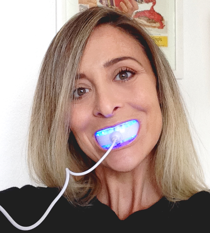 Rio_smile_white_advanced_blue_light_teeth_whitening_3