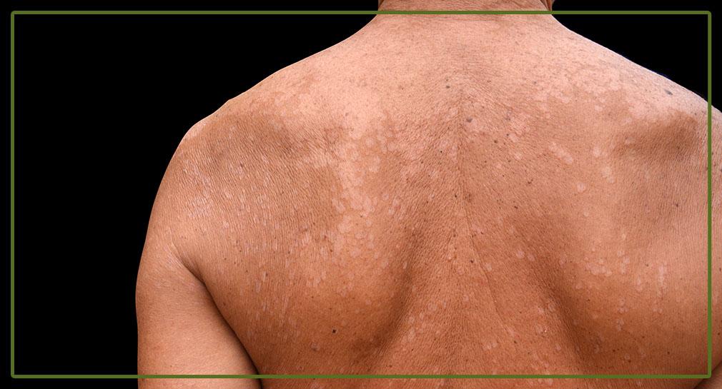 бели петна по кожата