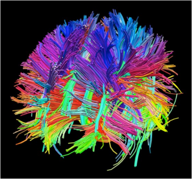 Human brain mapped with diffusion tensor imaging. CREDIT: COURTESY OF THE LABORATORY OF NEURO IMAGING AND MARTINOS CENTER FOR BIOMEDICAL IMAGING, WWW.HUMANCONNECTOMEPROJECT.COM