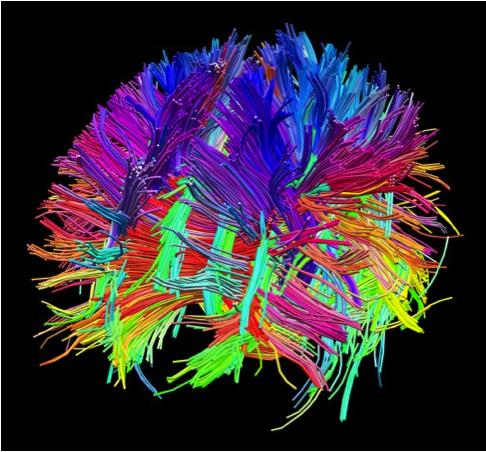Imagini pentru brain activity map image