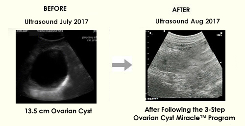 Ovarian Cyst Miracle (tm): *$39/sale! Top Ovarian Cysts Site On Cb!  Image of BA 44