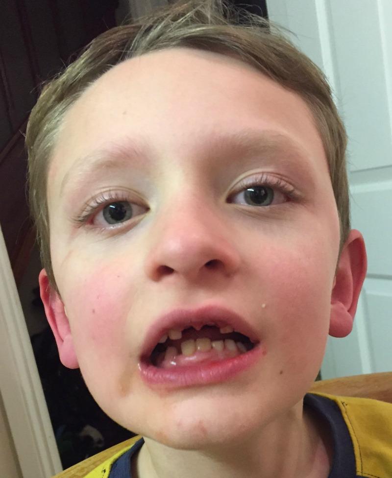 Losing teeth and winning an award