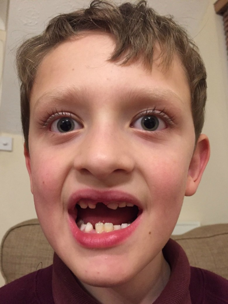 Losing teeth and winning an award