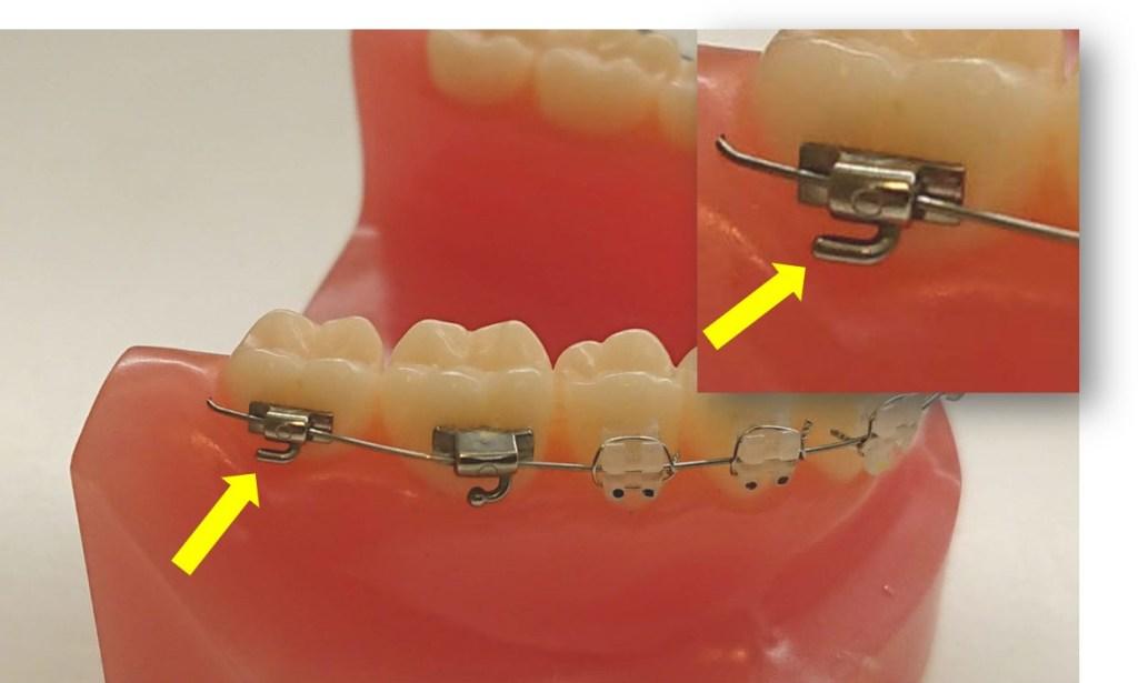 歯科矯正10か月 自己ゴム掛け 模型