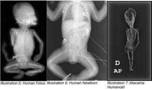 Um feto humano, à esquerda, comparado com o Ata.