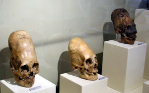 The photo of elongated skulls included in both articles. (Credit: Marcin Tlustochowicz/Wikimedia Commons)