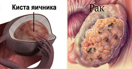 Злокачественная киста. Чем опасна киста молочной железы? Может ли мастопатия перерасти в рак молочной железы, как вовремя выявить изменения