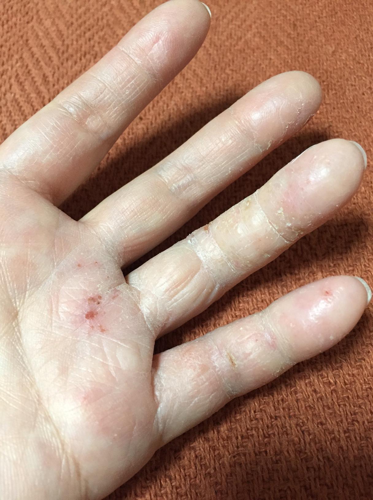 手の湿疹の正体は意外なものだった!原因不明の場合はこれを疑おう