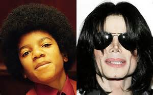 before after michael