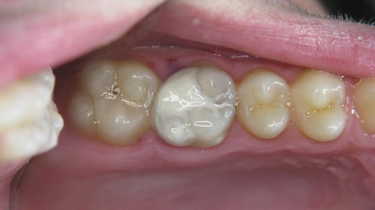 molar-26-repaired-1