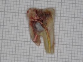 molar-47-extracted-part-2