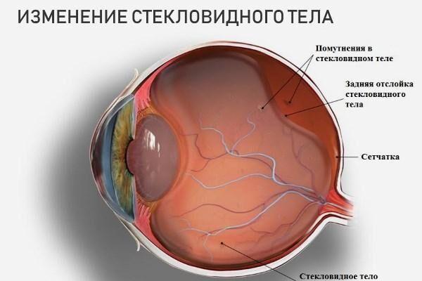 látás mitesszereket okoz)