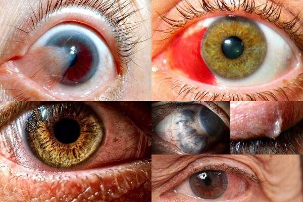 a szemész ég a szemében