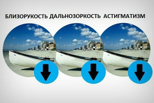 A bal szem 30% -os látása a látás javítása módszerrel
