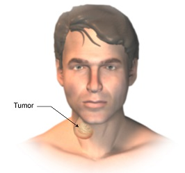 Lump or mass in the neck/throat