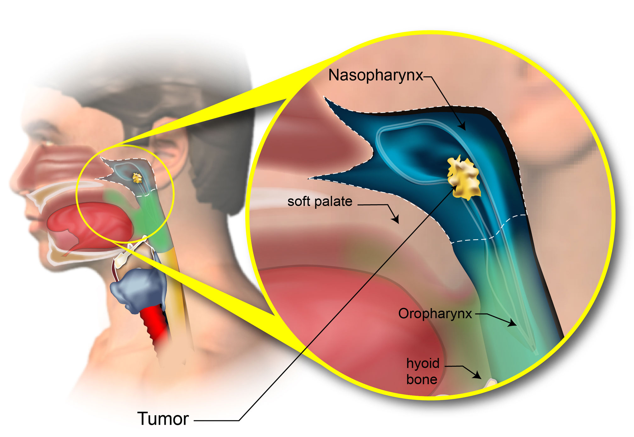 Staging of Pharyngeal Cancer - American Head & Neck Society