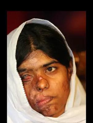 Bushra sufrió dos ataques con ácido porque su familia rechazó una propuesta de matrimonio.  Foto: ASTI