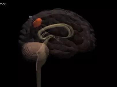 A técnica permite que os pesquisadores movam tumores de locais inoperáveis para áreas mais acessíveis do cérebro Foto: Youtube