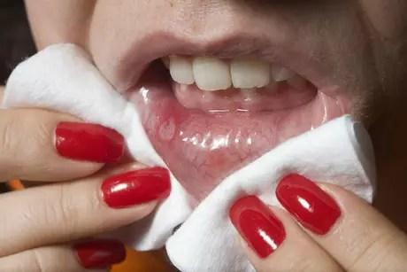 A saliva ainda contém anticorpos que combatem infecções virais e o que os especialistas chamam de Fator de Crescimento Epitelial, que são proteínas que diminuem o tempo de cicatrização