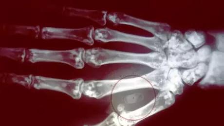 Você implantaria um chip na mão para pagar sem cartão?