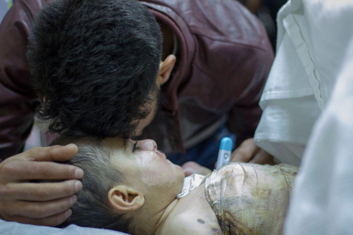 Nabaz mista den fem år gamle sonen sin Barez då ein gasstank i teltet deira eksploderte. Kona Bayan og sonen Bahez (2) overlevde så vidt. Foto: Siri Bråtveit