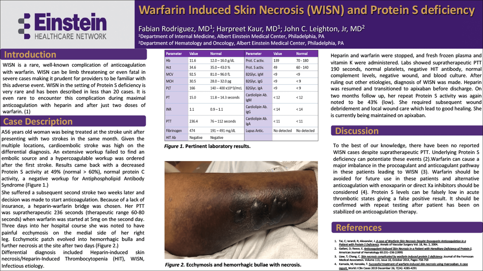 Fabian Rodriguez - PAS-7-Warfarin-Induced-Skin-Necrosis-and-Protein-S-deficiency