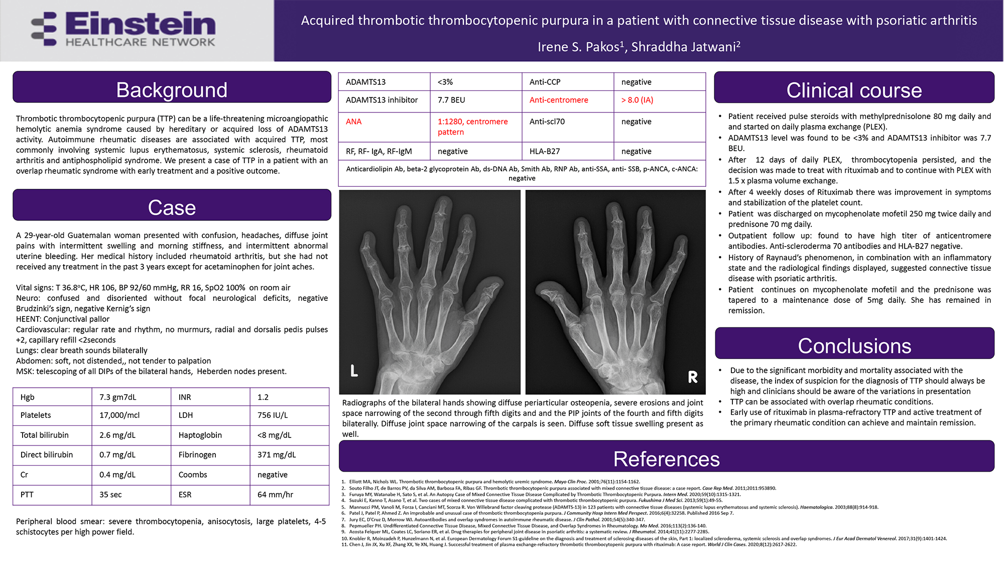 Irene Pakos - PAS-106-Acquired thrombotic thrombocytopenic purpura in a patient with connective tissue disease with psoriatic arthritis