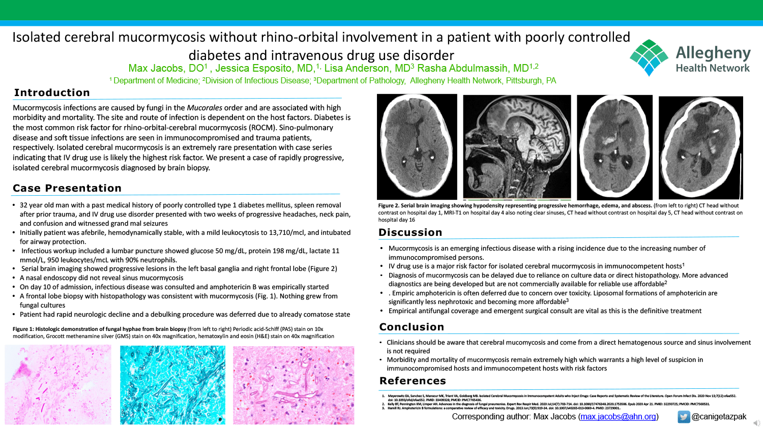 Max Jacobs - PAW-30-Isolated cerebral mucormycosis without rhino-orbital involvement