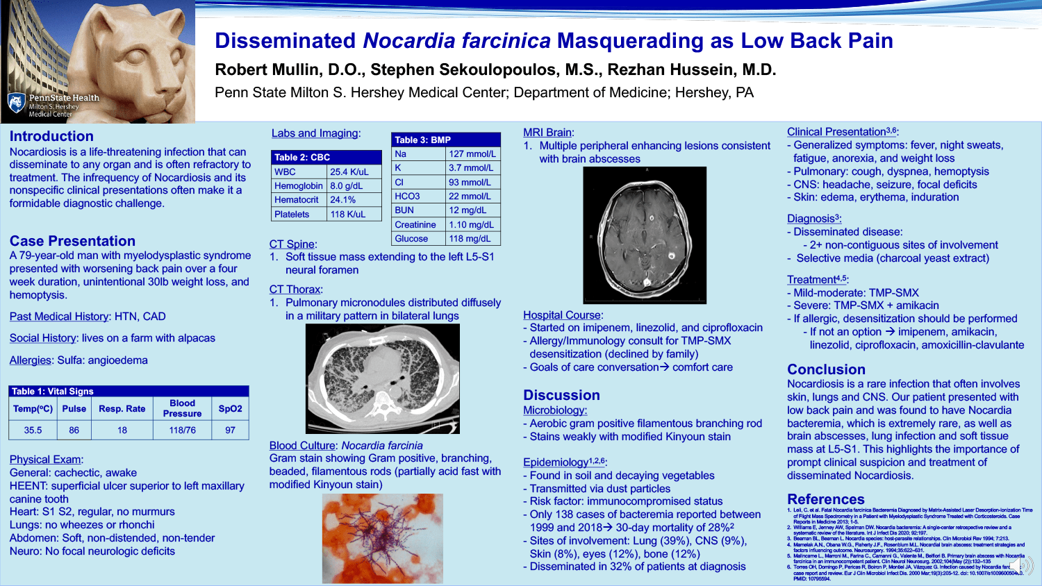 Robert Mullin - PAE-42-Disseminated-Nocardia-farcinica Masquerading-as-Low-Back-Pain