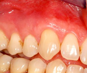 Parodontologia - dopo la cura
