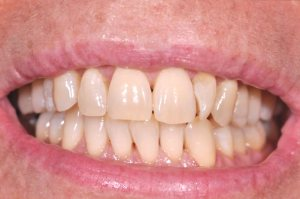 Dopo lo sbiancamento dentale
