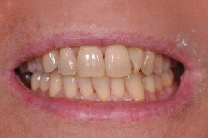 Prima dello sbiancamento dentale