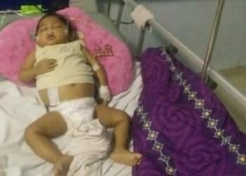 Bayi Athira yang menderita Atresia Bilier Sirosis. (tumpak)