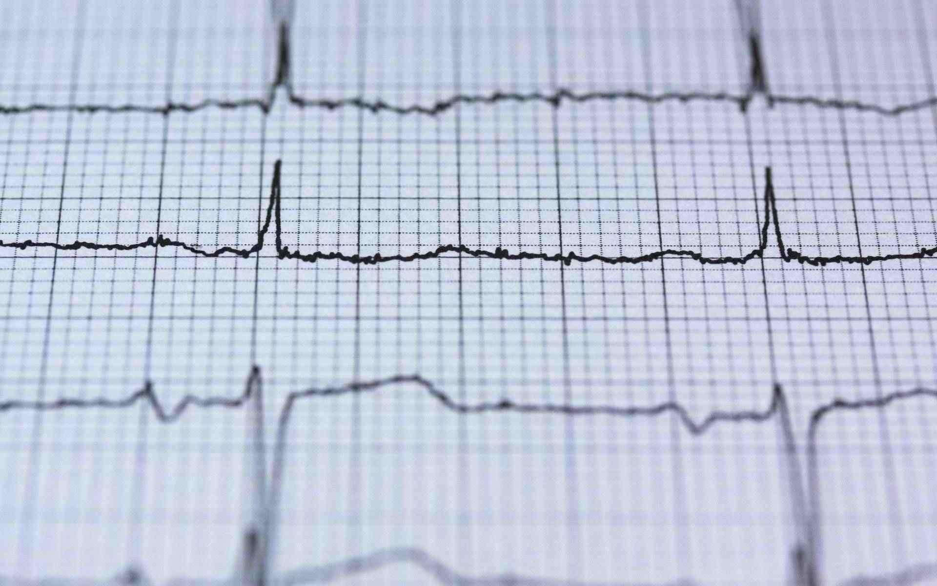 services cardiogram