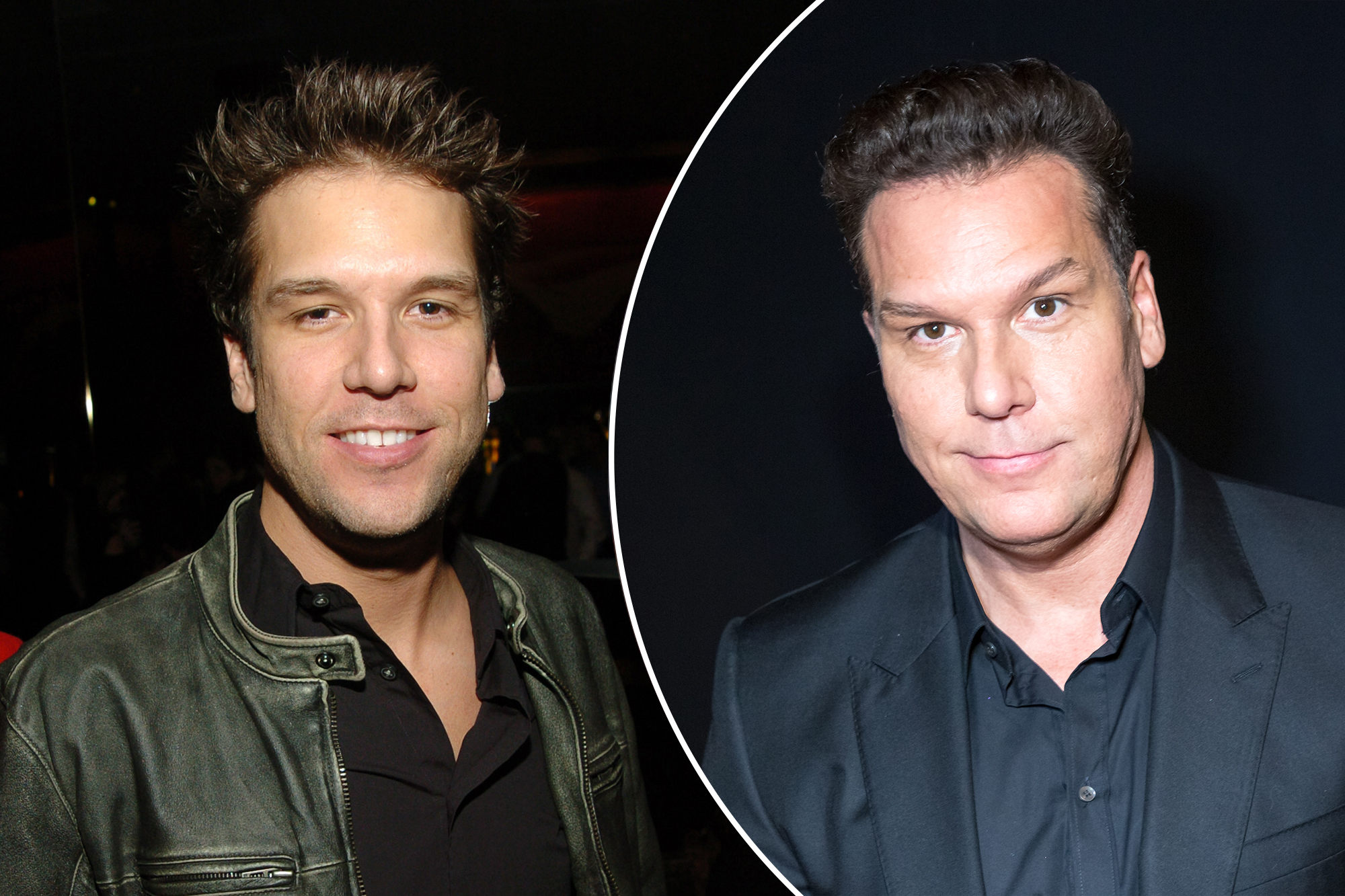 What happened to Dane Cook's face?