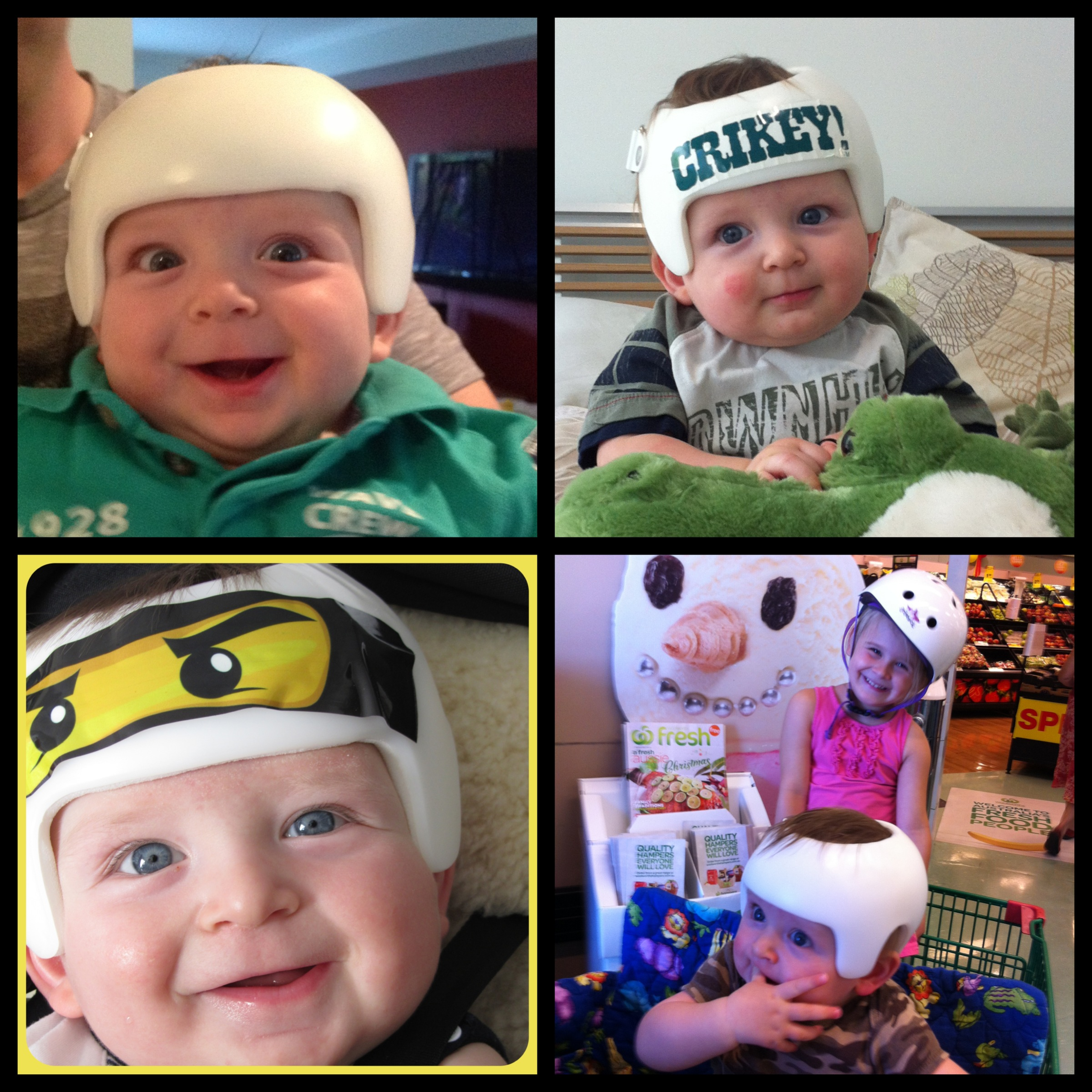 Putting The Play In Plagiocephaly Plagiocephaly Paging - Baby helmet decalsa family blog that takes you through the experience of a baby with