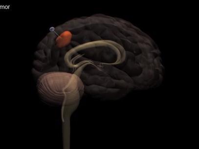Especialistas descobrem técnica que retira células cancerígenas do cérebro