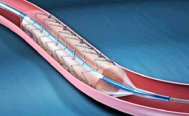 SUS deve incorporar aparelho para tratamento de diabetes
