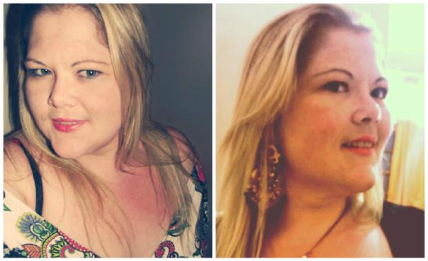 Mulher morre após perder 45 quilos em seis meses com dieta radical